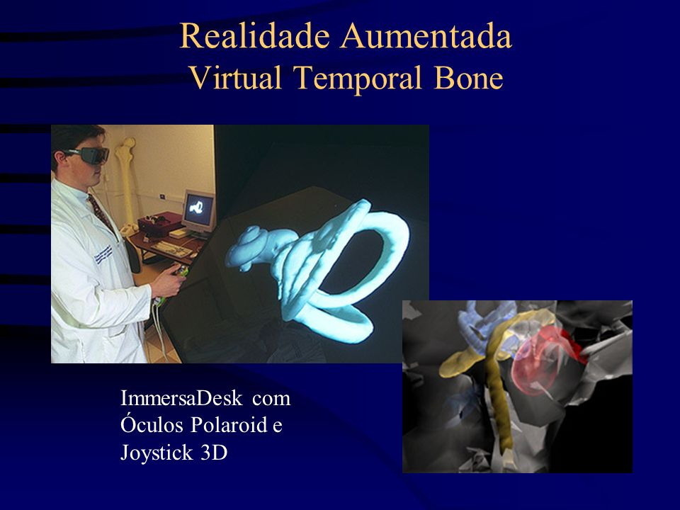 Realidade Aumentada Virtual Temporal Bone