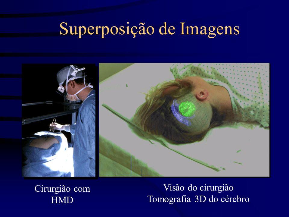 Superposição de Imagens