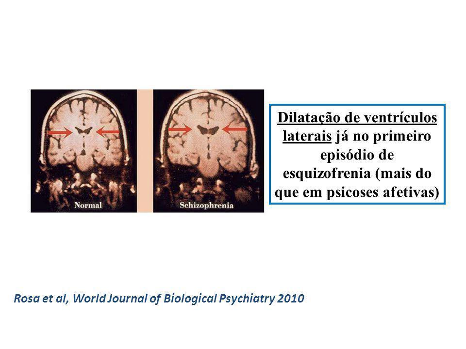 Dilatação de ventrículos laterais já no primeiro episódio de esquizofrenia (mais do que em psicoses afetivas)