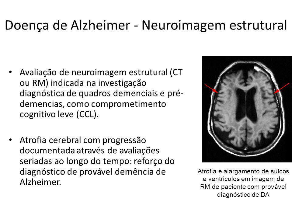 Doença de Alzheimer - Neuroimagem estrutural