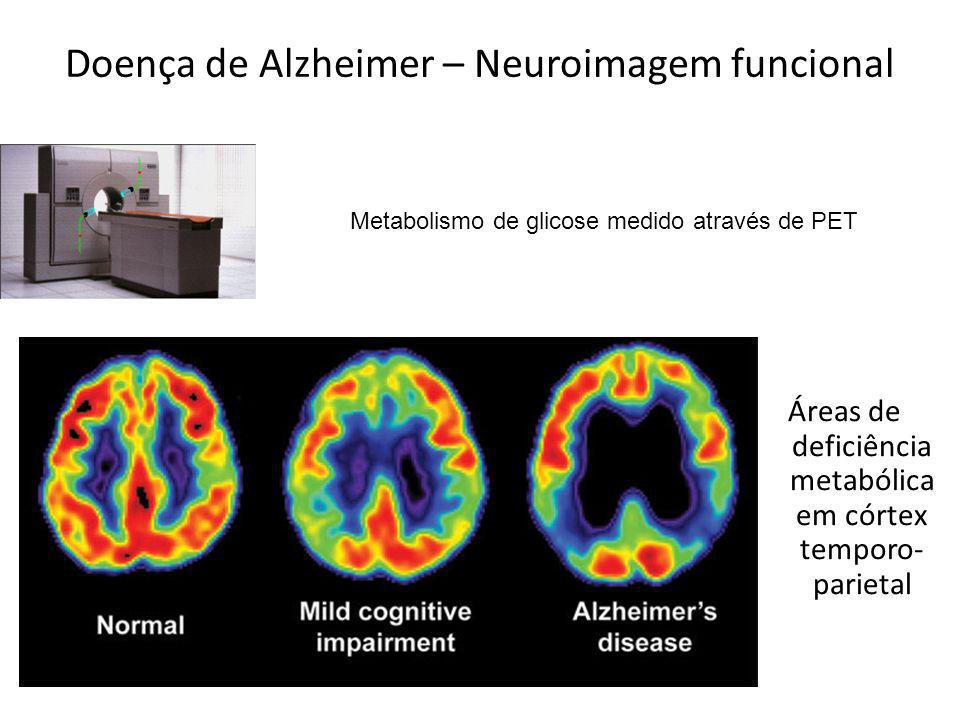 Doença de Alzheimer – Neuroimagem funcional