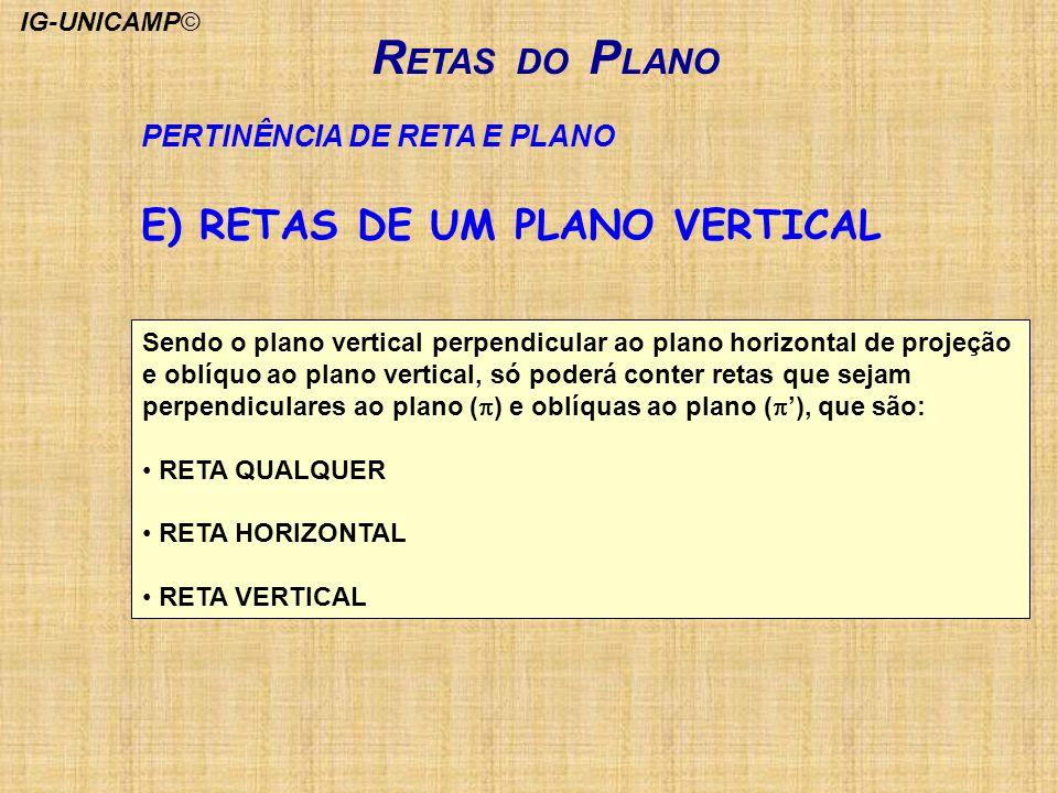 RETAS DO PLANO E) RETAS DE UM PLANO VERTICAL