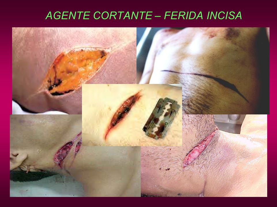 AGENTE CORTANTE – FERIDA INCISA