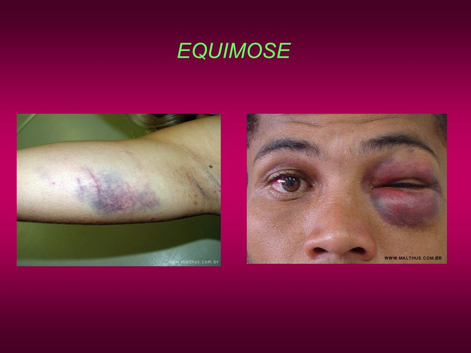 EQUIMOSE