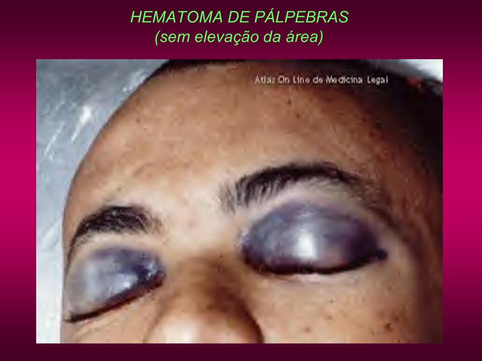 HEMATOMA DE PÁLPEBRAS (sem elevação da área)