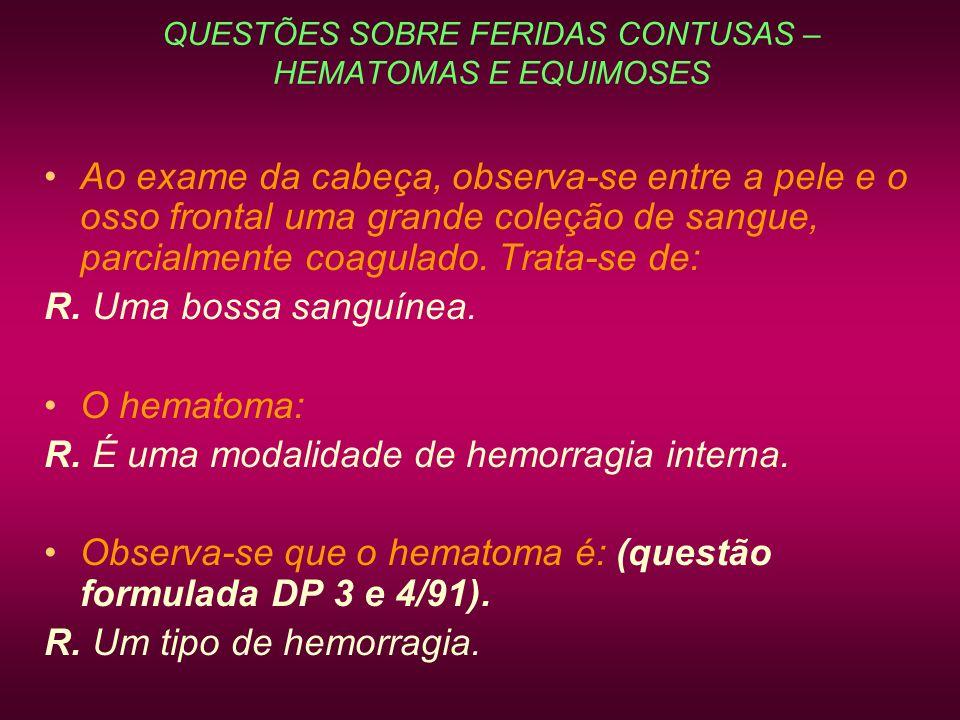 QUESTÕES SOBRE FERIDAS CONTUSAS – HEMATOMAS E EQUIMOSES