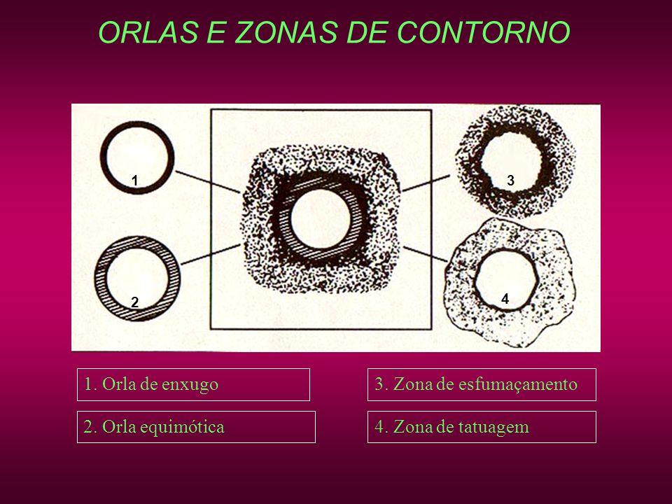 ORLAS E ZONAS DE CONTORNO