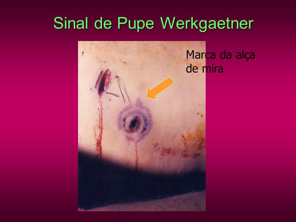 Sinal de Pupe Werkgaetner