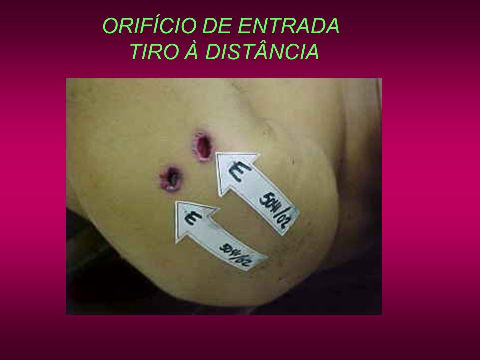 ORIFÍCIO DE ENTRADA TIRO À DISTÂNCIA