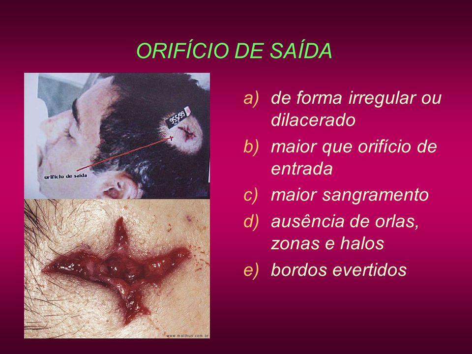 ORIFÍCIO DE SAÍDA de forma irregular ou dilacerado