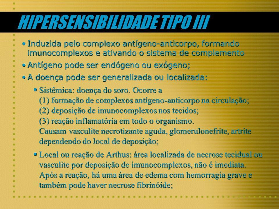 HIPERSENSIBILIDADE TIPO III