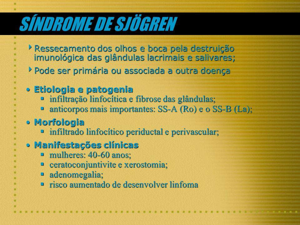 SÍNDROME DE SJÖGREN infiltração linfocítica e fibrose das glândulas;