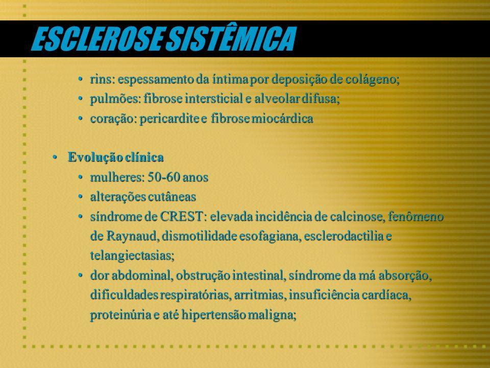 ESCLEROSE SISTÊMICA rins: espessamento da íntima por deposição de colágeno; pulmões: fibrose intersticial e alveolar difusa;