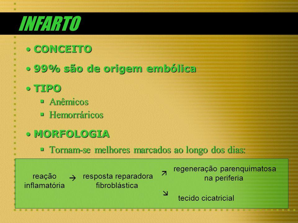 INFARTO CONCEITO 99% são de origem embólica TIPO Anêmicos Hemorráricos