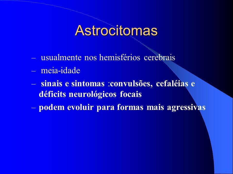 Astrocitomas usualmente nos hemisférios cerebrais meia-idade