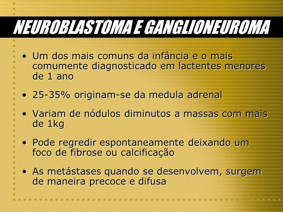 NEUROBLASTOMA E GANGLIONEUROMA