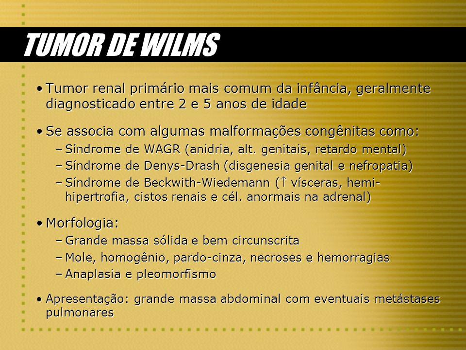 TUMOR DE WILMSTumor renal primário mais comum da infância, geralmente diagnosticado entre 2 e 5 anos de idade.