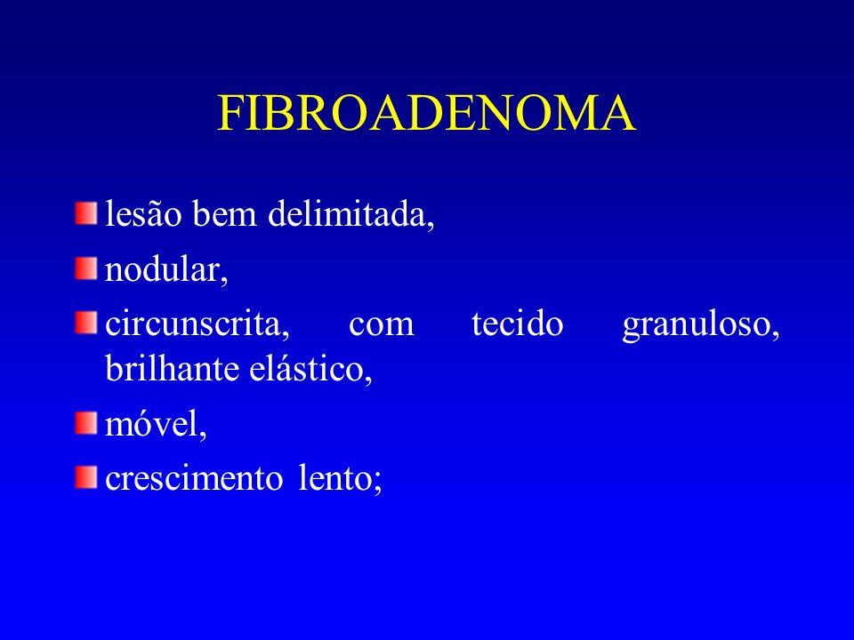 FIBROADENOMA lesão bem delimitada, nodular,