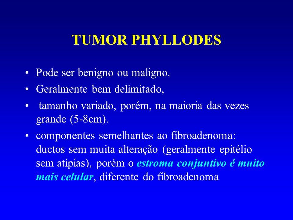 TUMOR PHYLLODES Pode ser benigno ou maligno.