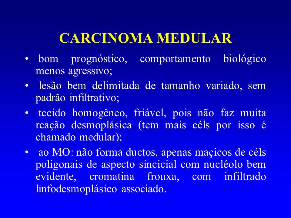 CARCINOMA MEDULARbom prognóstico, comportamento biológico menos agressivo; lesão bem delimitada de tamanho variado, sem padrão infiltrativo;