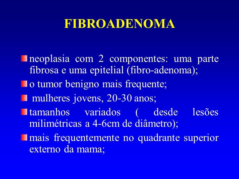 FIBROADENOMA neoplasia com 2 componentes: uma parte fibrosa e uma epitelial (fibro-adenoma); o tumor benigno mais frequente;