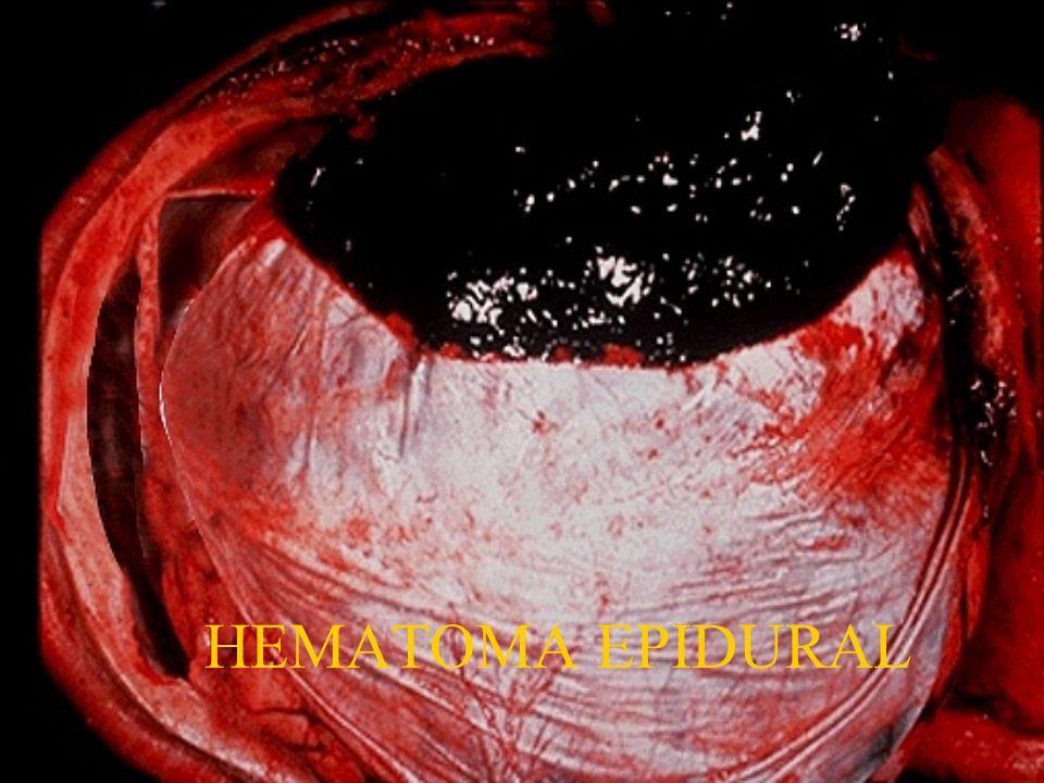 HEMATOMA EPIDURAL