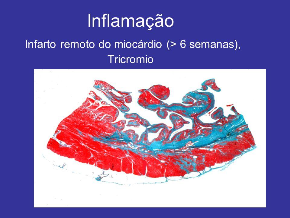 Inflamação Infarto remoto do miocárdio (> 6 semanas), Tricromio