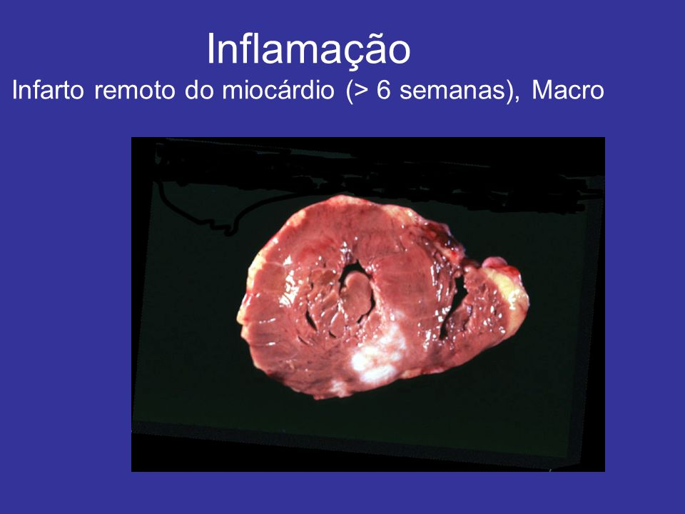 Inflamação Infarto remoto do miocárdio (> 6 semanas), Macro