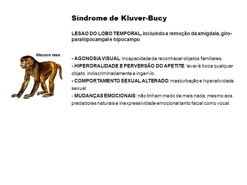 Síndrome de Kluver-Bucy