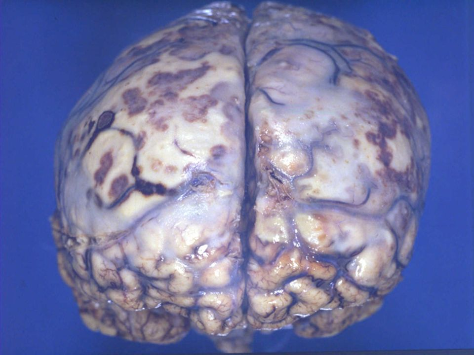 This postmortem picture shows the brain covered with pus due to bacterial meningitis.