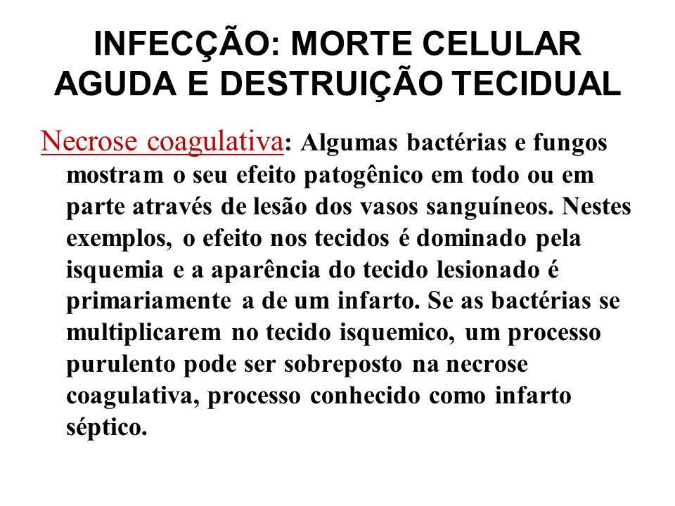 INFECÇÃO: MORTE CELULAR AGUDA E DESTRUIÇÃO TECIDUAL