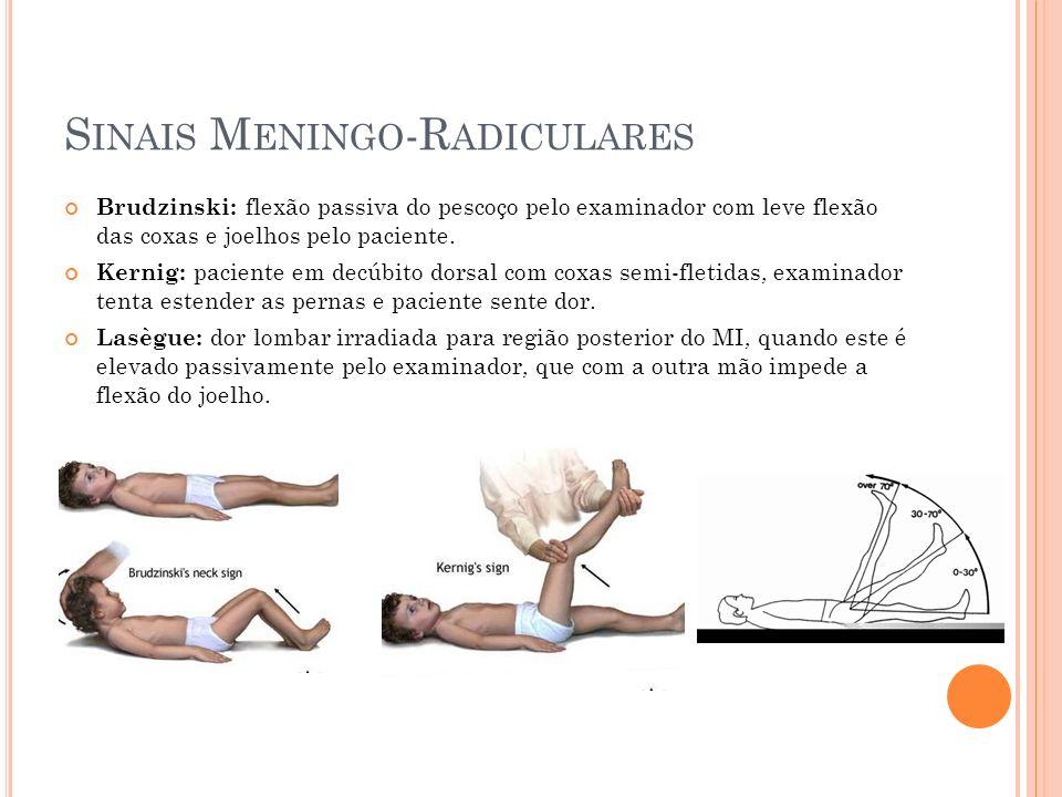 Sinais Meningo-Radiculares