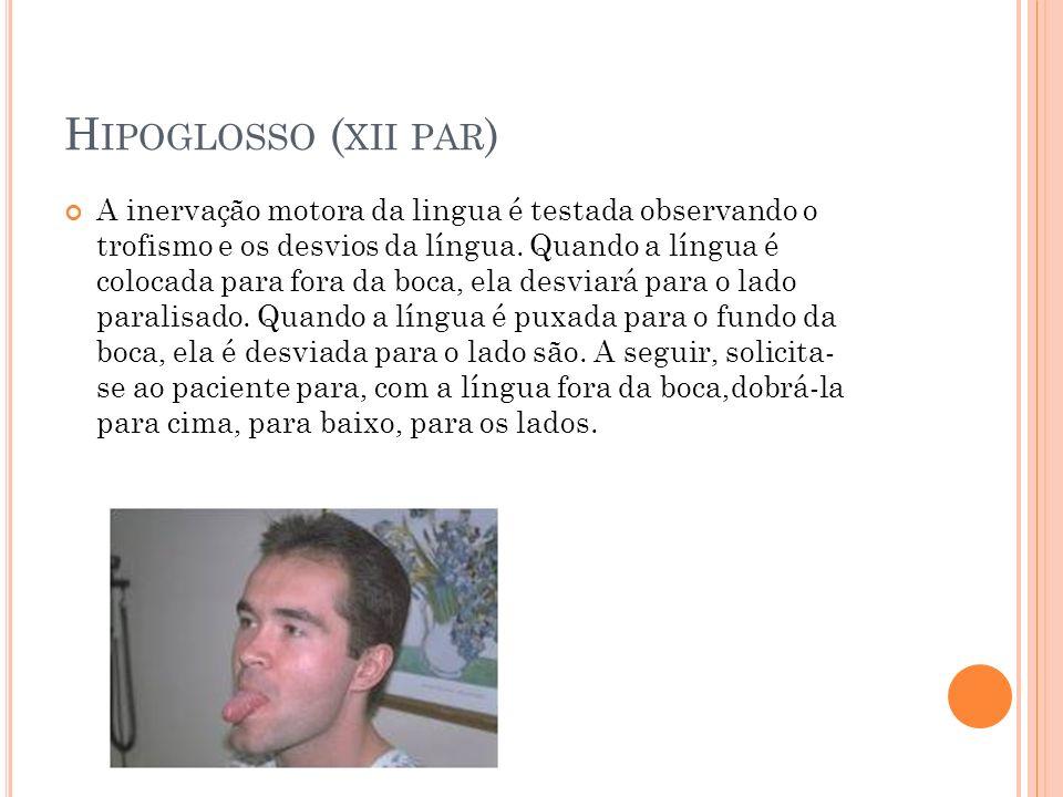 Hipoglosso (xii par)