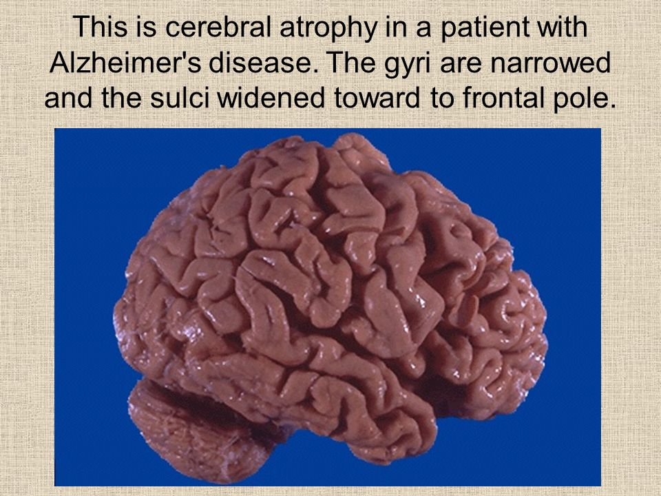 This is cerebral atrophy in a patient with Alzheimer s disease