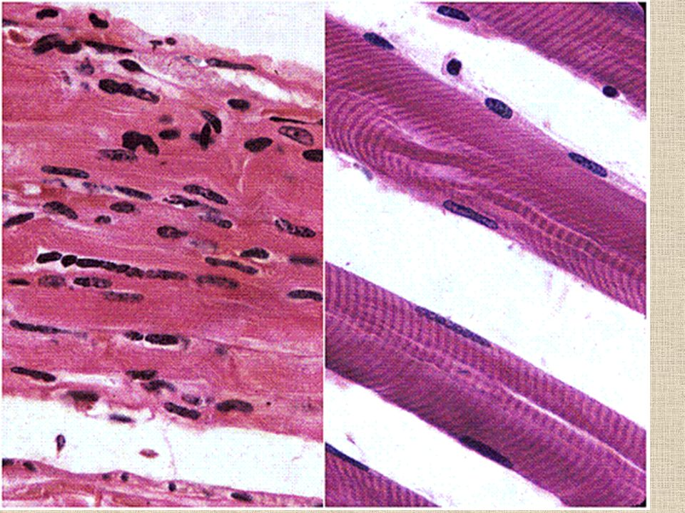 Because the cells have decreased in size so greatly, the nuclei are closer and appear to have increased in number. Also, notice the varying size of the muscle fibers. Because this is disuse atrophy, the fibers atrophy at different rates. If this were atrophy due to loss of innervation, the fibers would atrophy at the same rate.