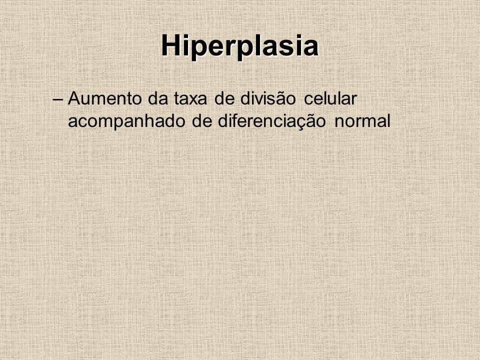 Hiperplasia Aumento da taxa de divisão celular acompanhado de diferenciação normal