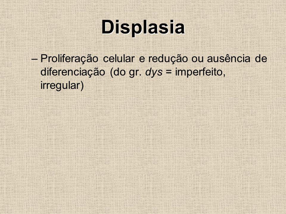 Displasia Proliferação celular e redução ou ausência de diferenciação (do gr.