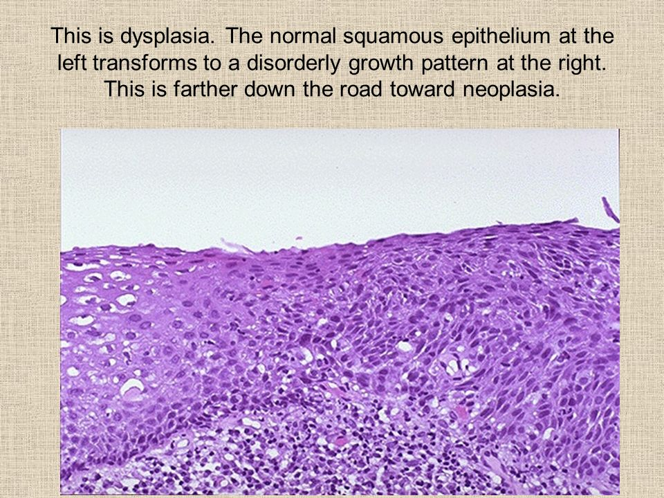 This is dysplasia.