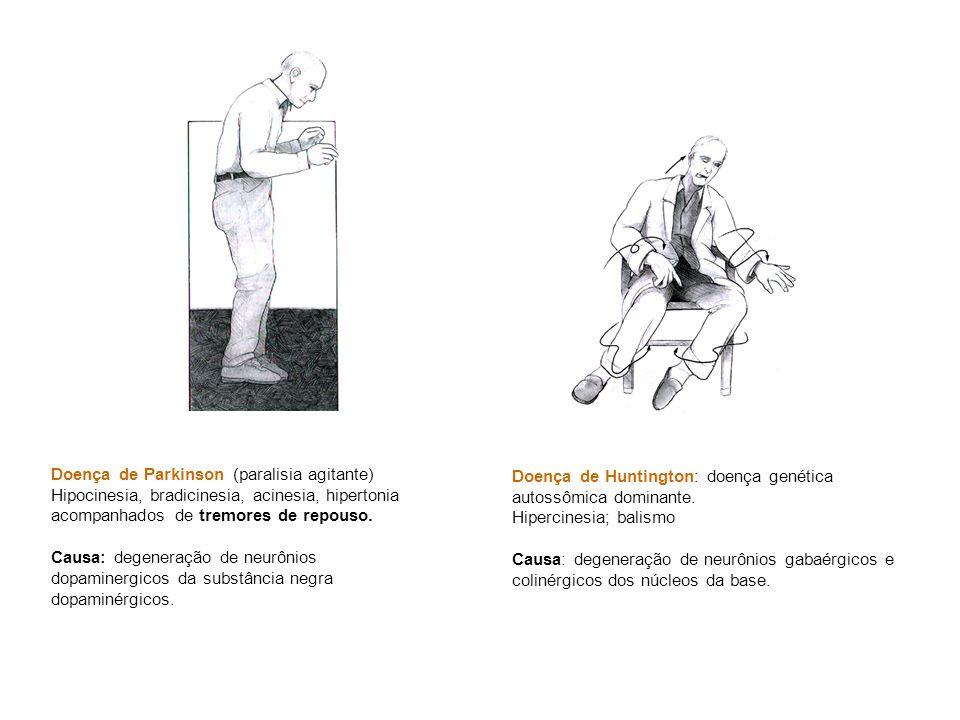 Doença de Parkinson (paralisia agitante)