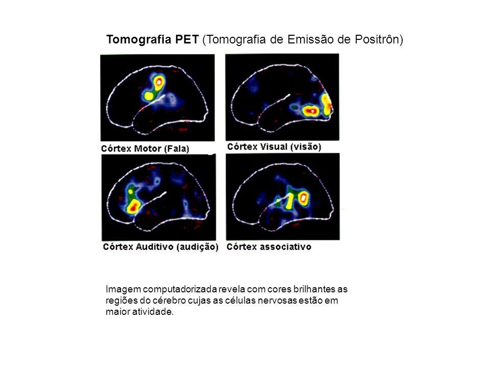 Tomografia PET (Tomografia de Emissão de Positrôn)
