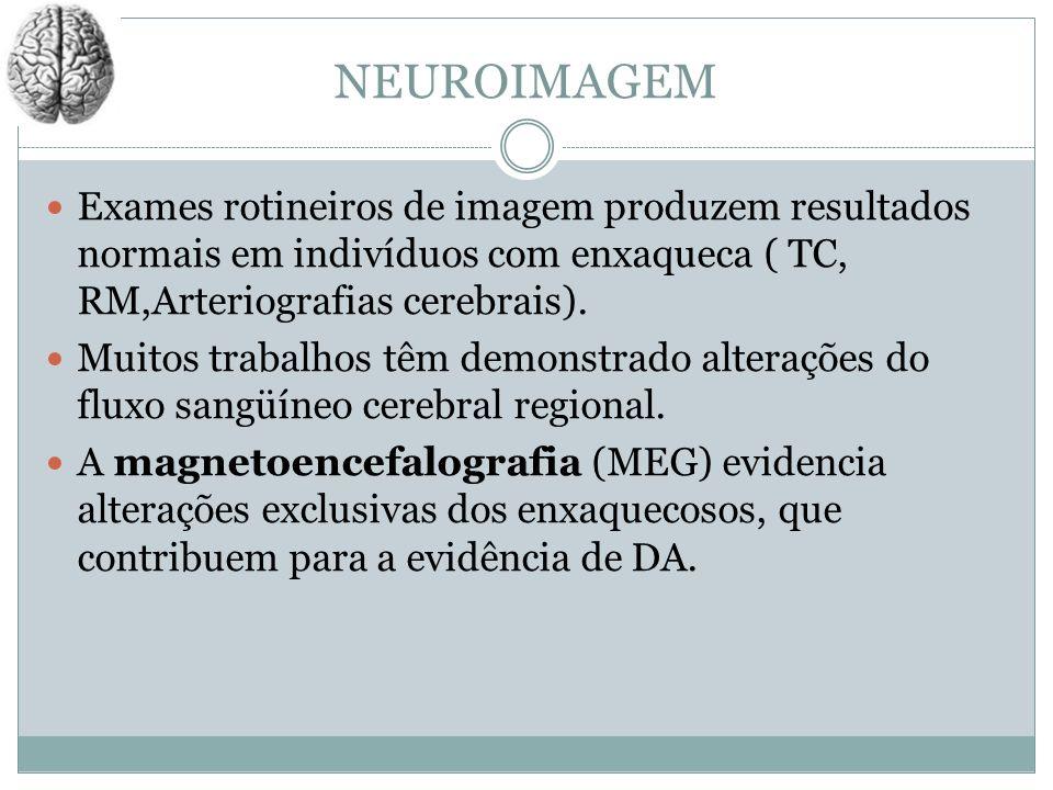 NEUROIMAGEMExames rotineiros de imagem produzem resultados normais em indivíduos com enxaqueca ( TC, RM,Arteriografias cerebrais).