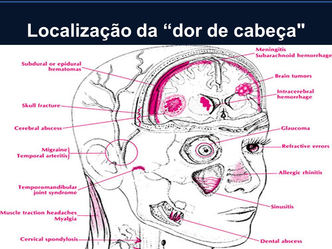 Localização da dor de cabeça