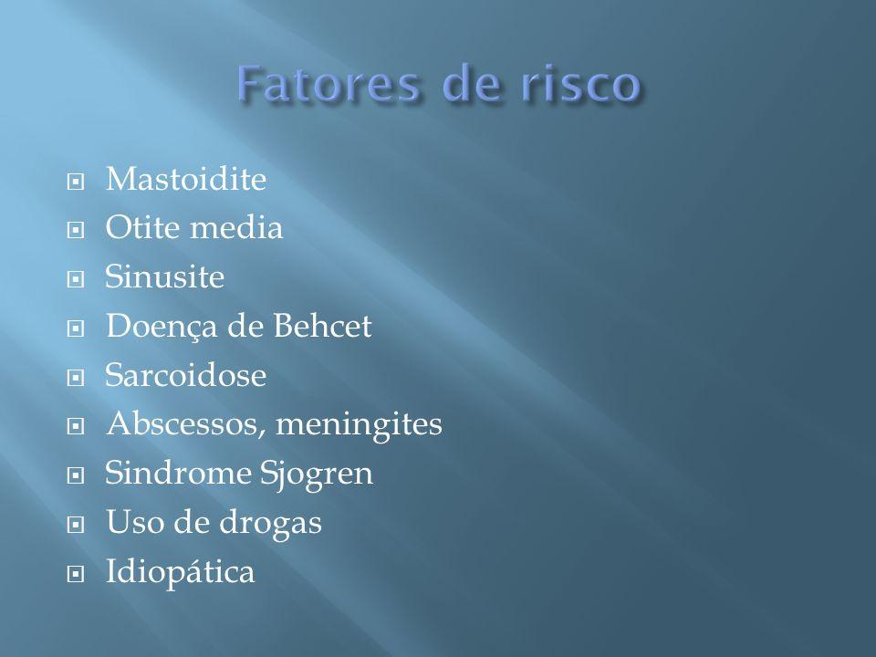 Fatores de risco Mastoidite Otite media Sinusite Doença de Behcet