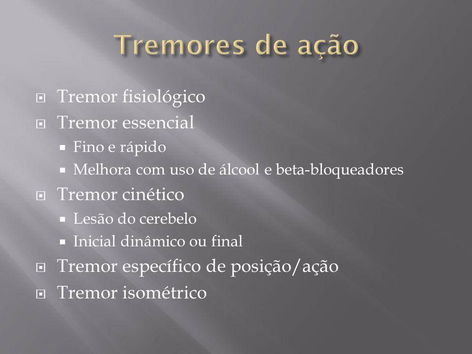 Tremores de ação Tremor fisiológico Tremor essencial Tremor cinético