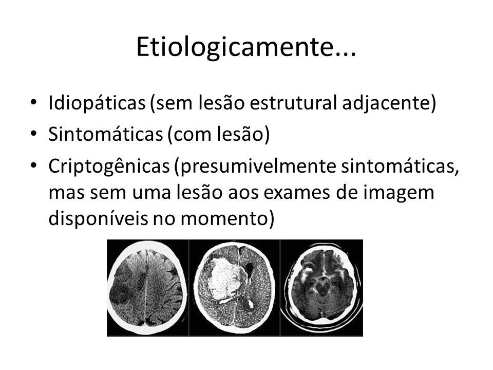 Etiologicamente... Idiopáticas (sem lesão estrutural adjacente)