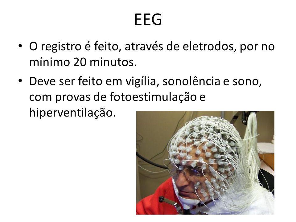 EEG O registro é feito, através de eletrodos, por no mínimo 20 minutos.