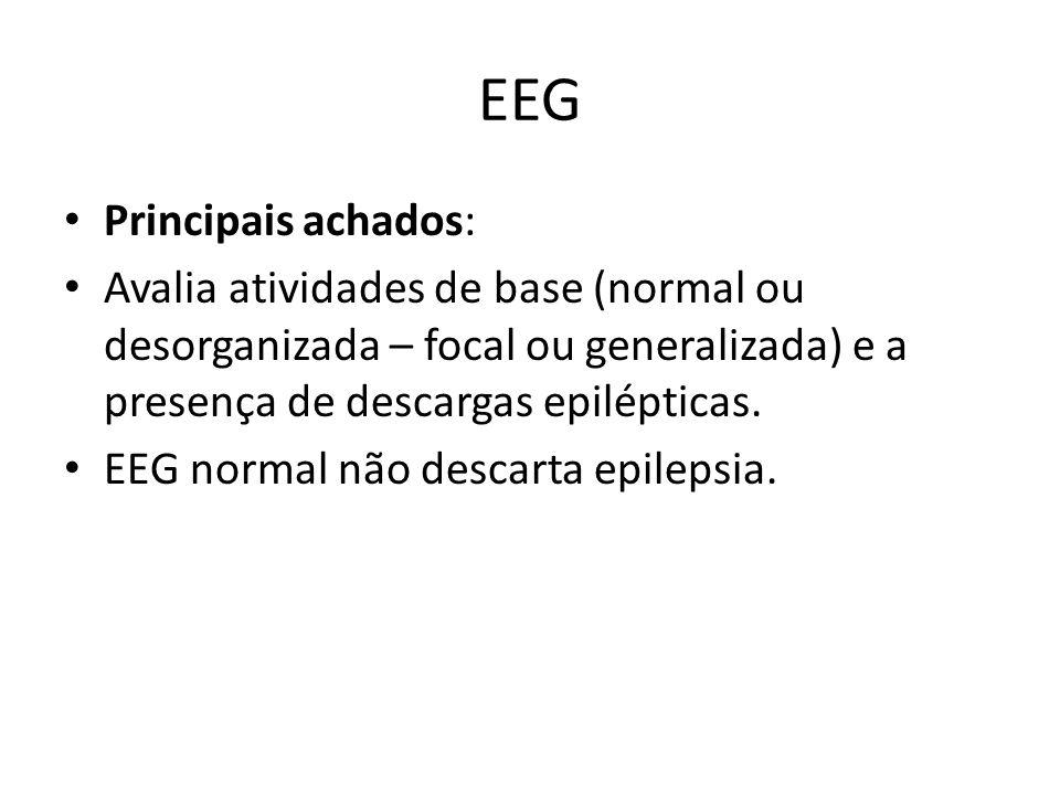 EEG Principais achados: