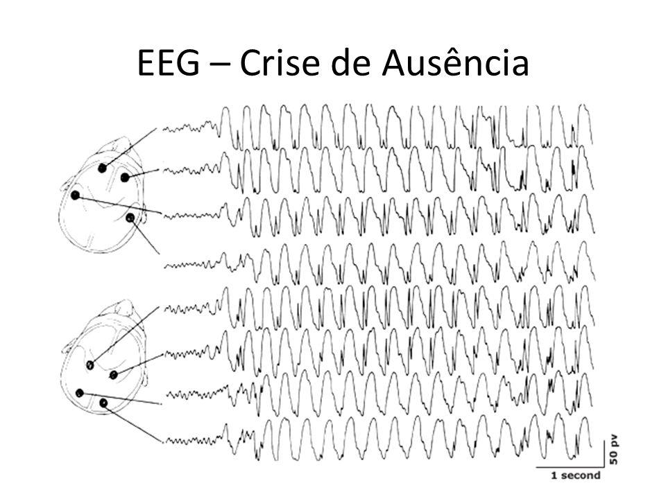 EEG – Crise de Ausência