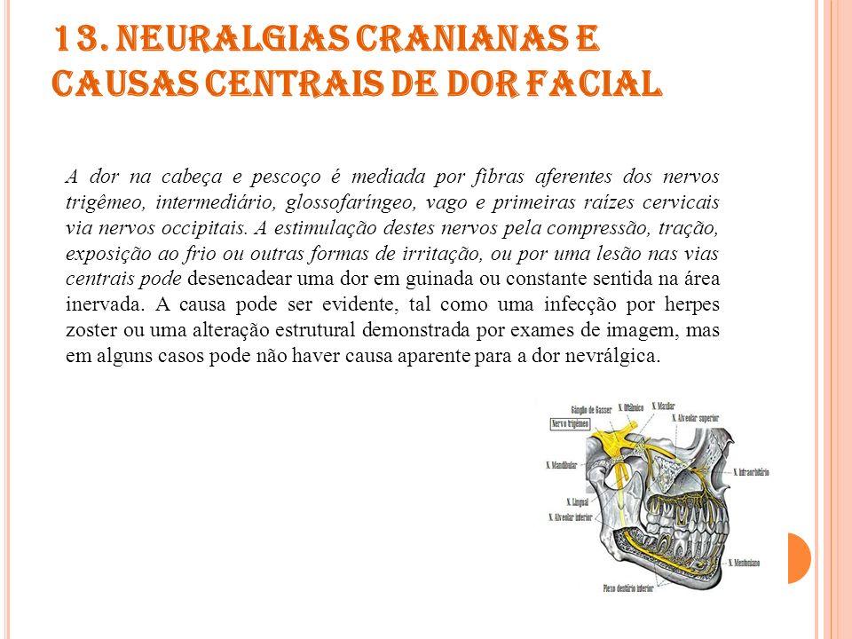 13. Neuralgias cranianas e causas centrais de dor facial