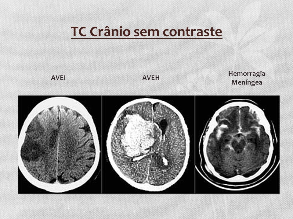 TC Crânio sem contraste